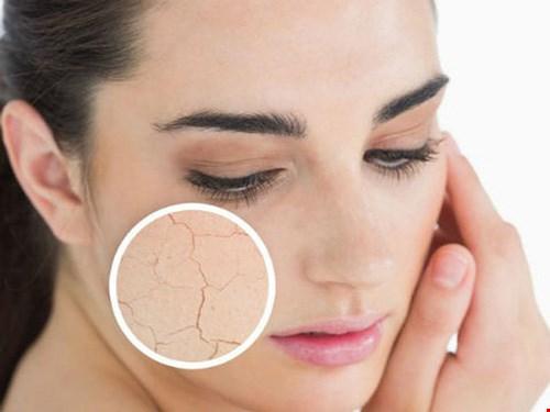 vấn đề khi da khô